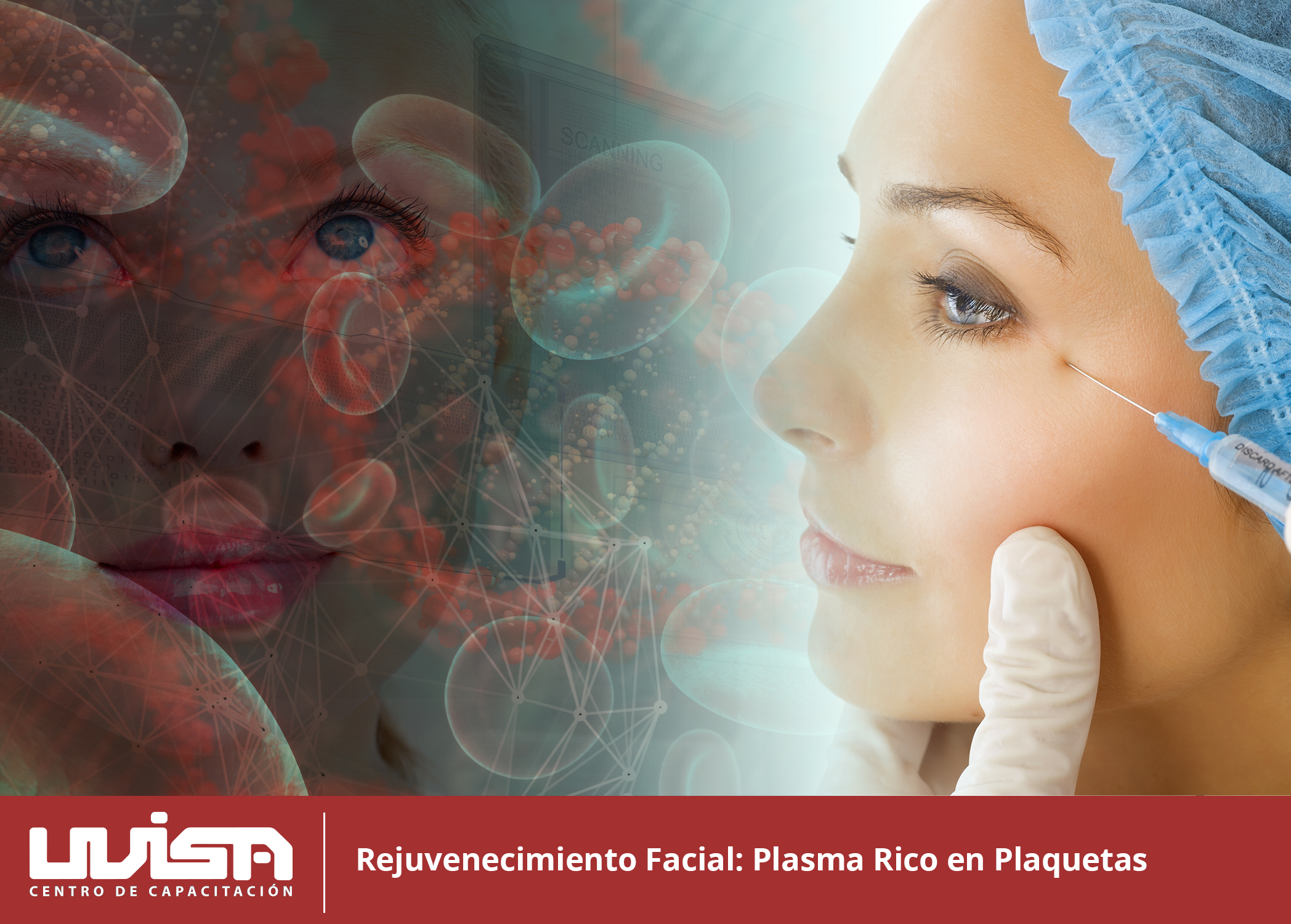 Rejuvenecimiento Facial: Plasma Rico en Plaquetas (PRP)